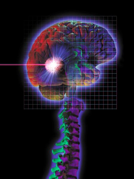 medico medicina scienza radiazione diagramma cervello