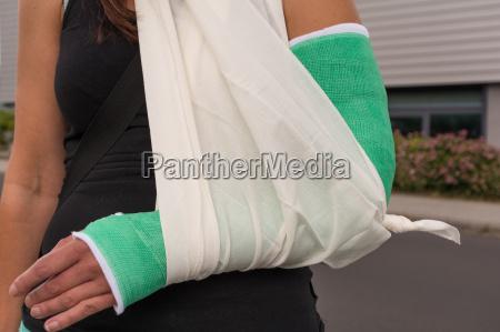 donna con braccio rotto