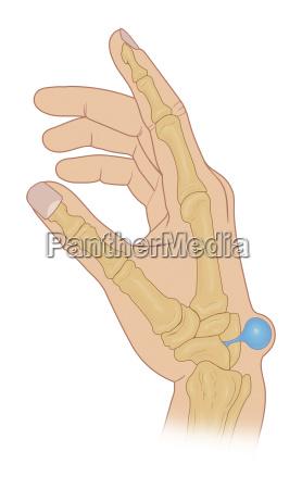 mano mani dettaglio medico medicina uomo