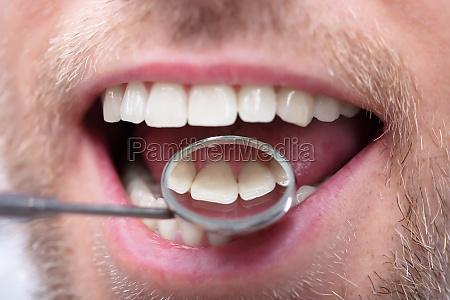 man having dental checkup