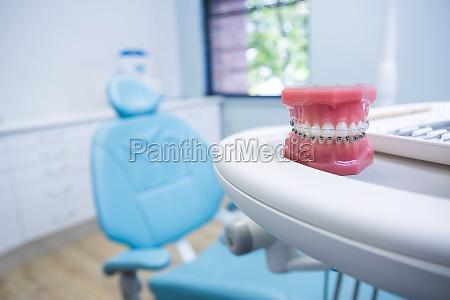 stampo dentale su tavolo per sedia